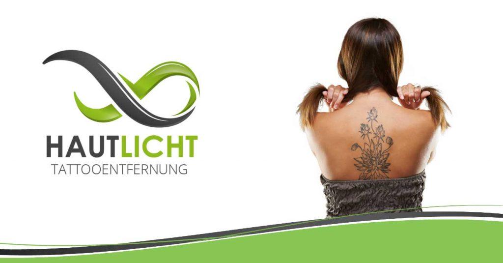 Tattooentfernung Hautlicht
