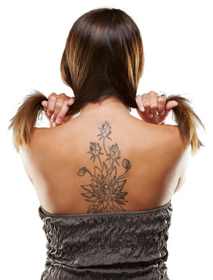 Hautlicht Tattooenfernung